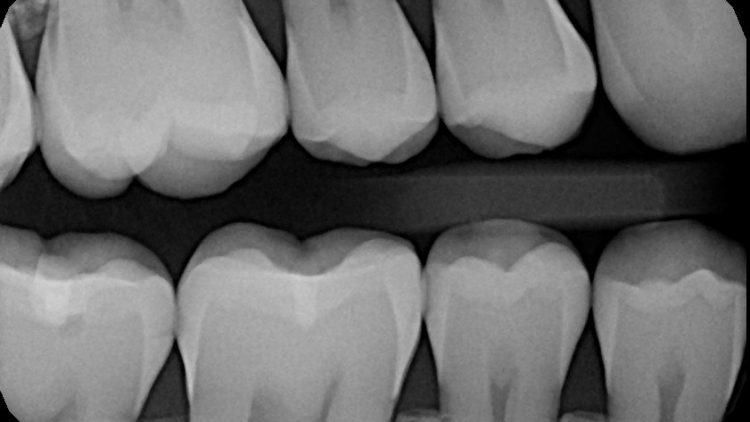 Are dental x-rays really harmful? Why do I need them?