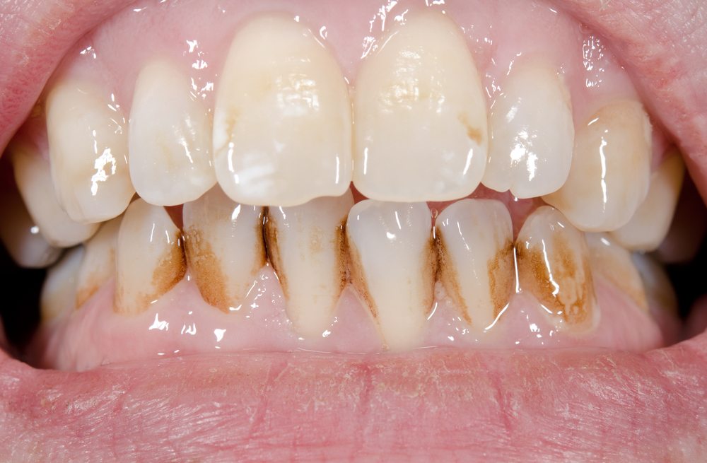 What stains our teeth?